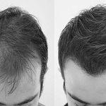 Organik Saç Ekimi