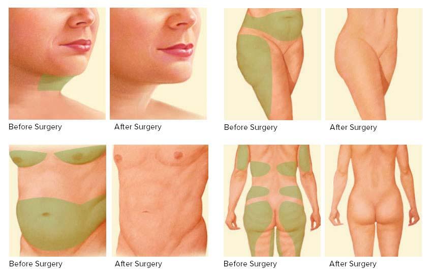 Kilo Verme Sonrası Estetik Cerrahi