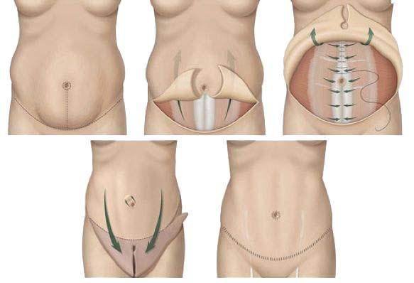 Karın germe ( abdominoplasti)